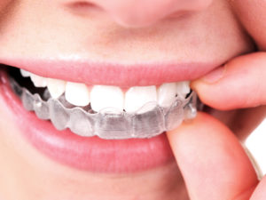 Redmond Way Dentistry offers Invisalign to provide customized teeth straightening